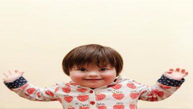 ماهو مرض متلازمة داون؟ وما سبب متلازمة داون؟